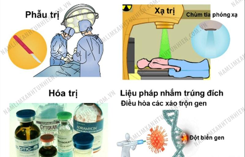 Nhũng phương pháp điều trị bệnh ung thư phổ biến